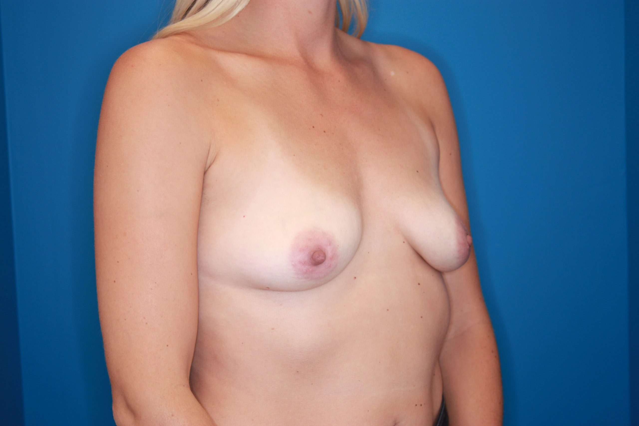 Breast Augmentation Patient Photo - Case 141 - before view-3