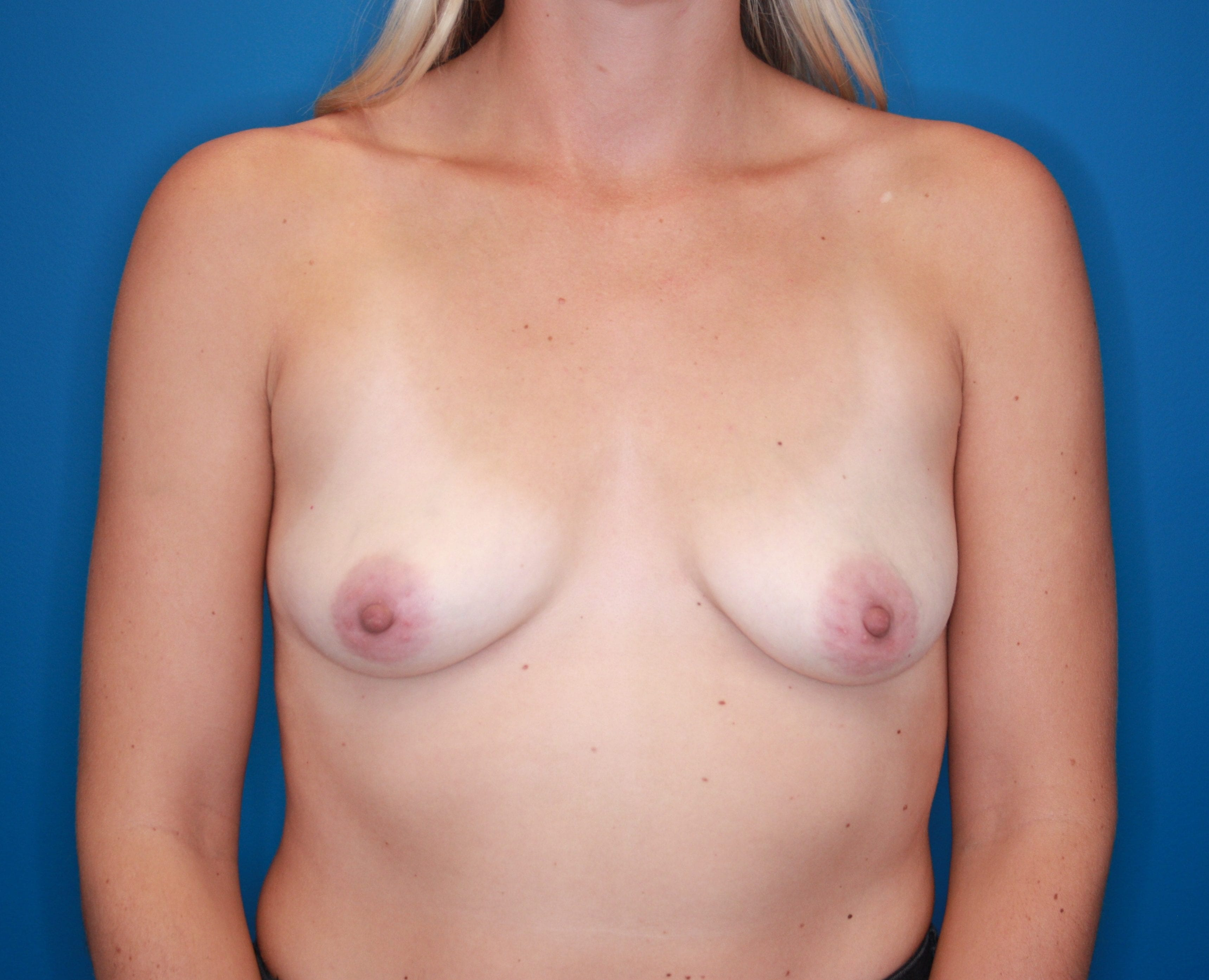 Breast Augmentation Patient Photo - Case 141 - before view-