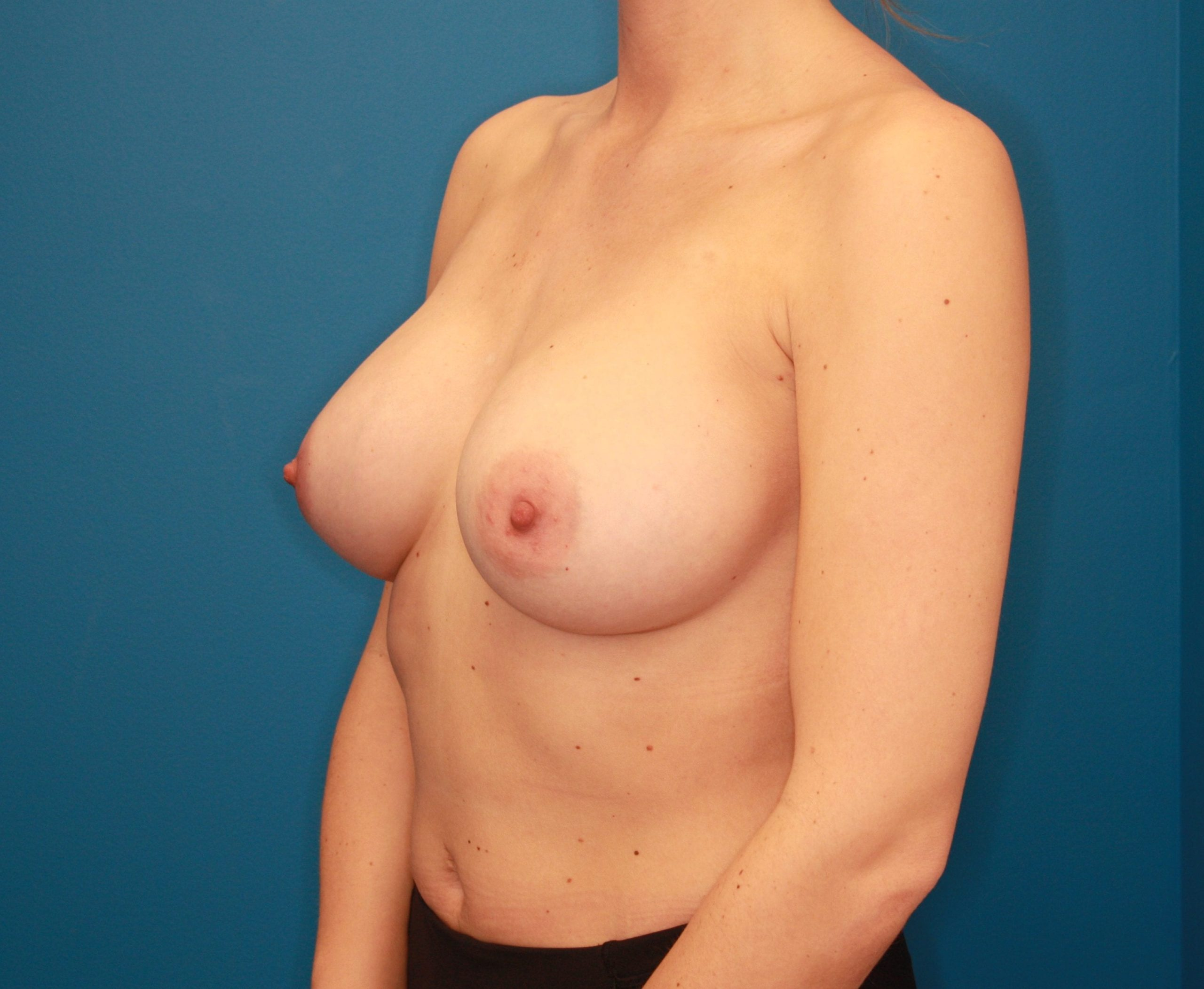 Breast Augmentation Patient Photo - Case 141 - after view-1