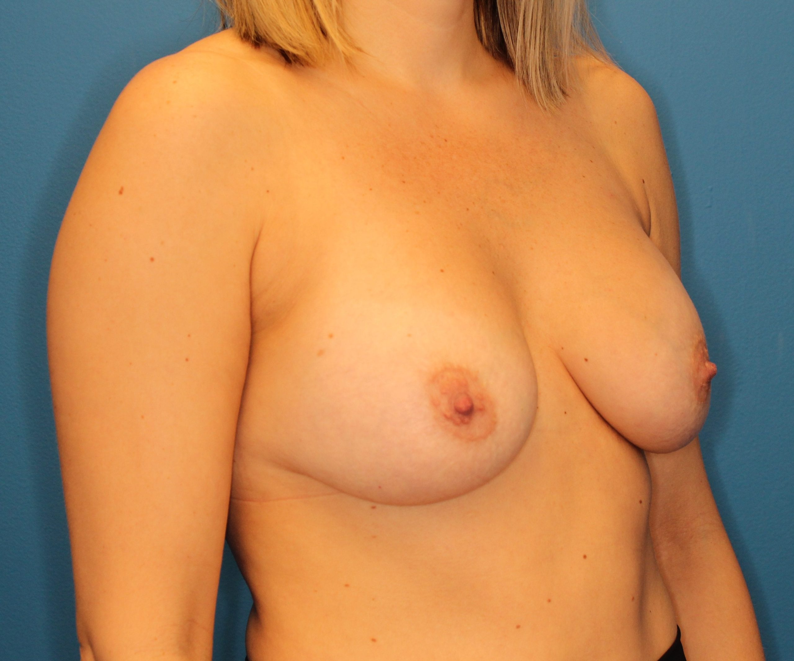 Breast Augmentation Patient Photo - Case 145 - after view-3