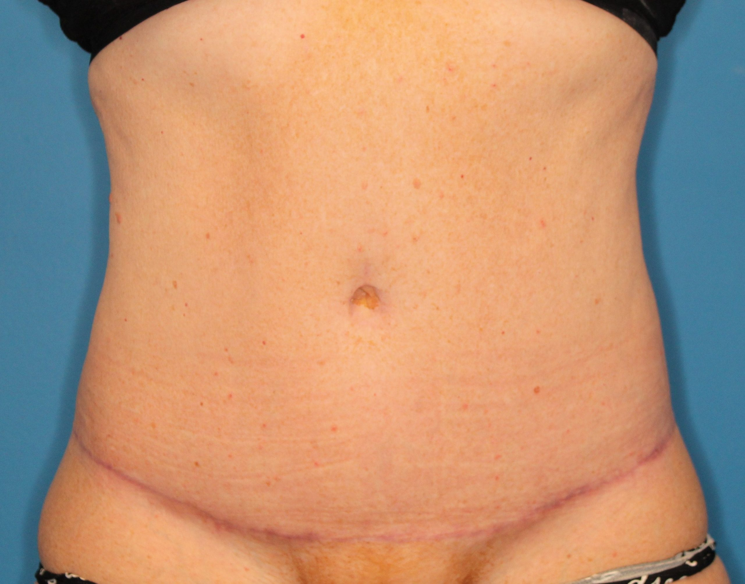 Tummy Tuck Patient Photo - Case 151 - after view