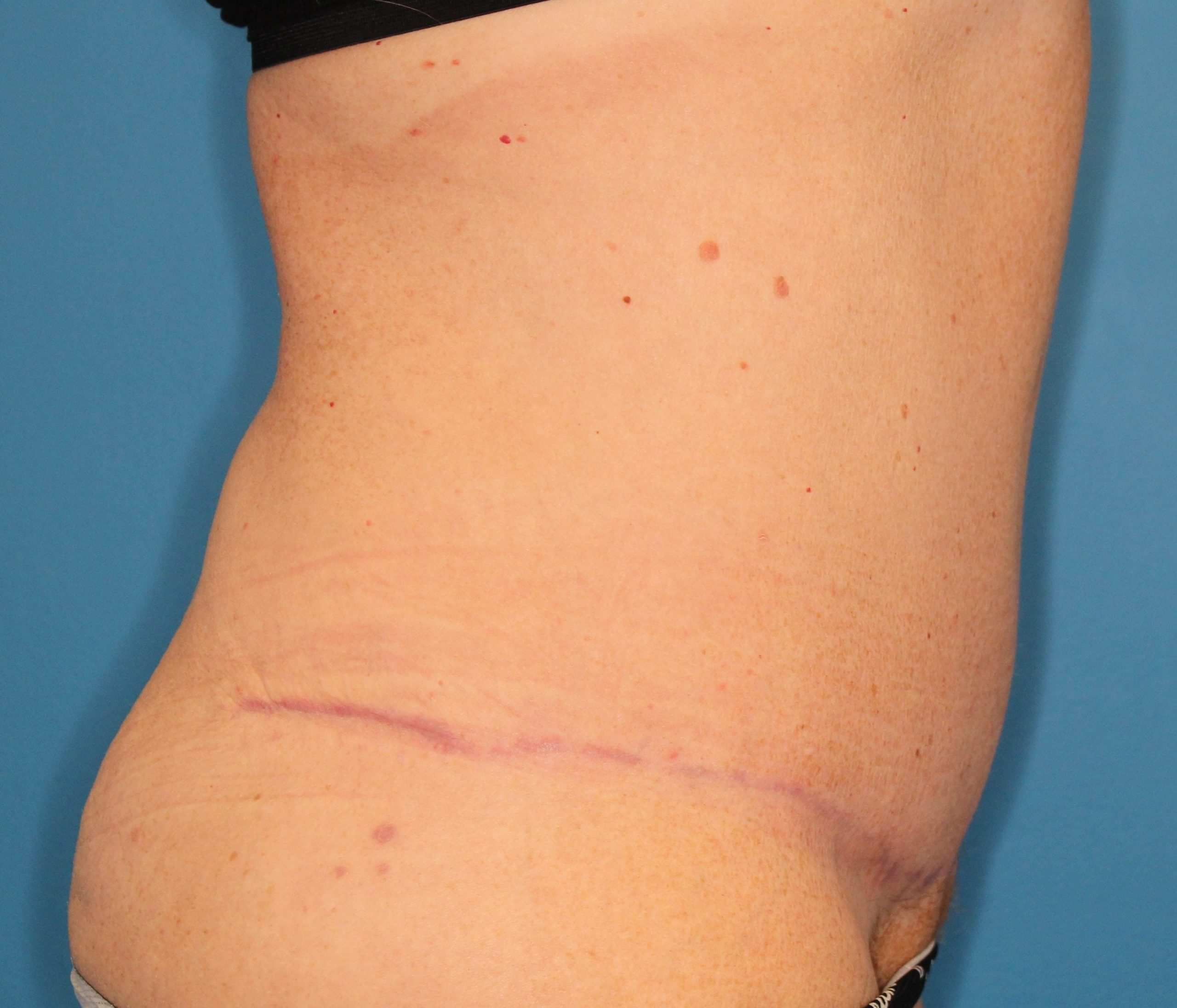 Tummy Tuck Patient Photo - Case 151 - after view-2