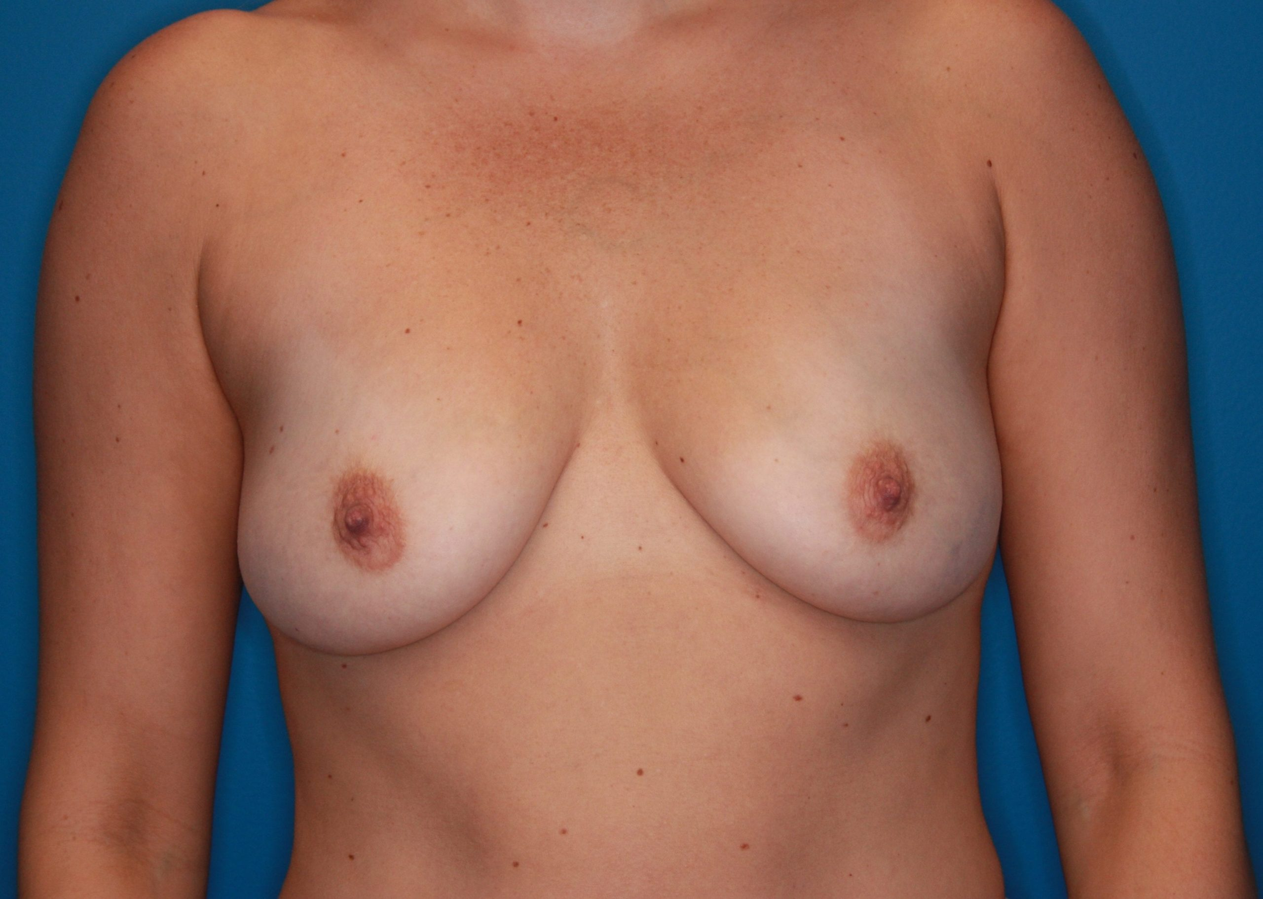 Breast Augmentation Patient Photo - Case 145 - before view-0