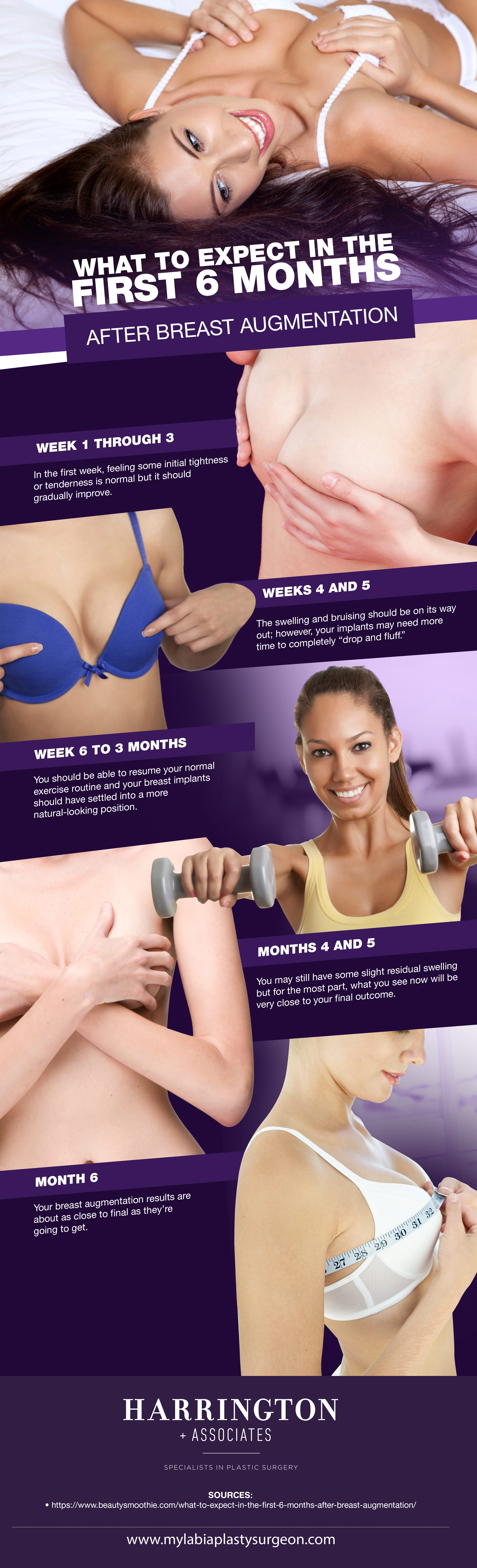 What to Expect in the First 6 Months After Breast Augmentation [Infographic] img 1