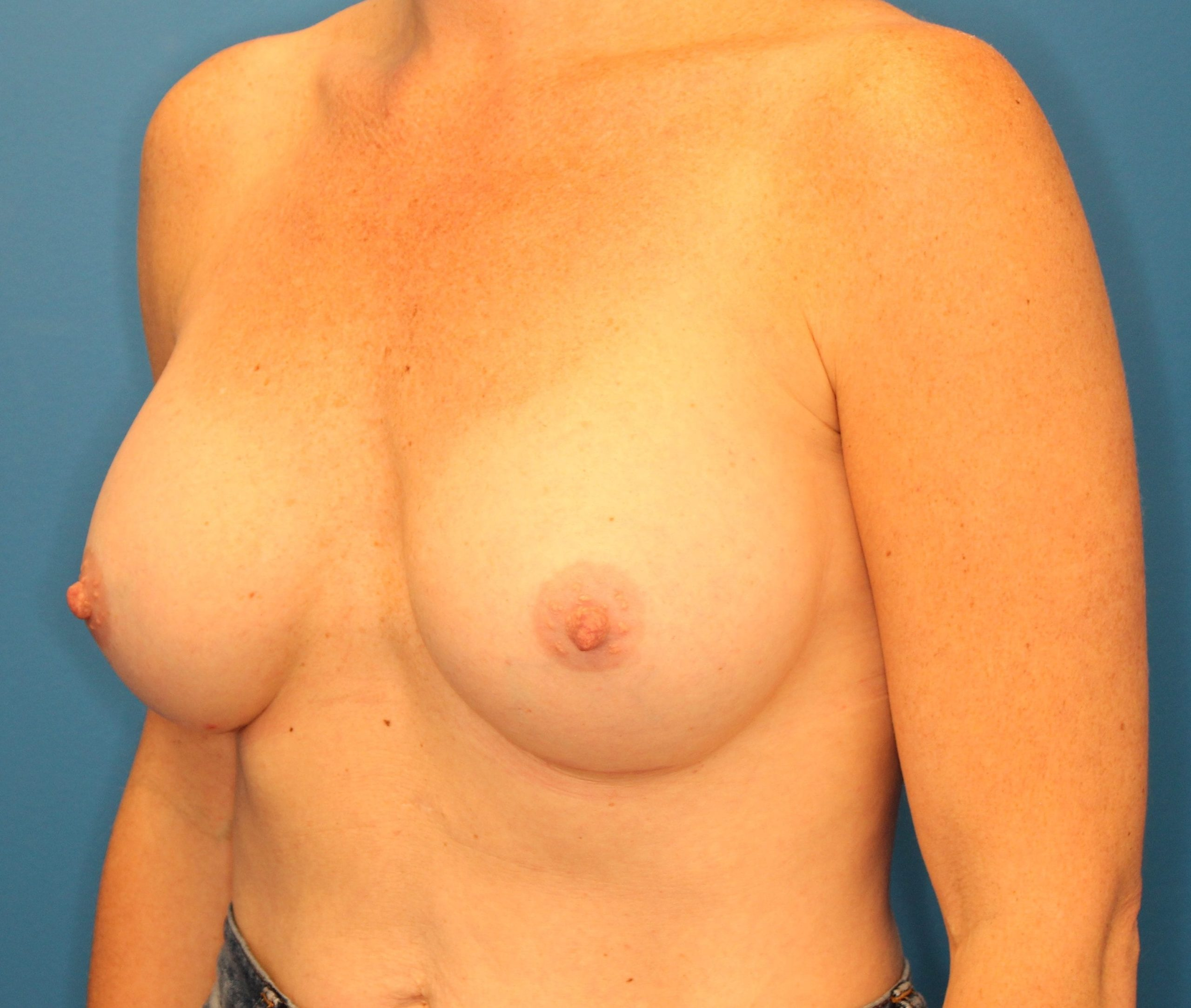 Breast Augmentation Patient Photo - Case 148 - after view-1