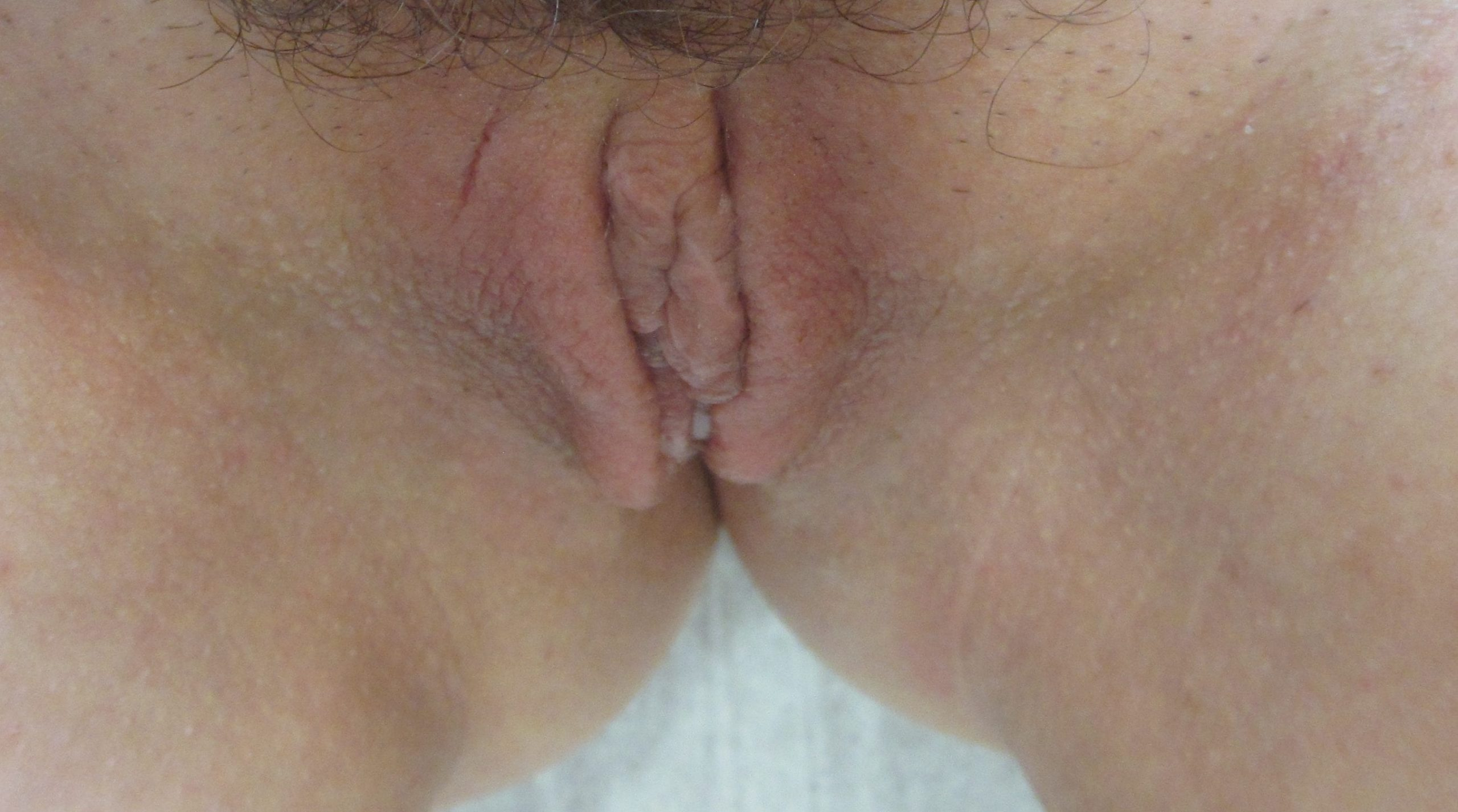 Labiaplasty Patient Photo - Case 153 - after view