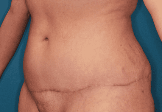 Tummy Tuck Patient Photo - Case 158 - after view-1