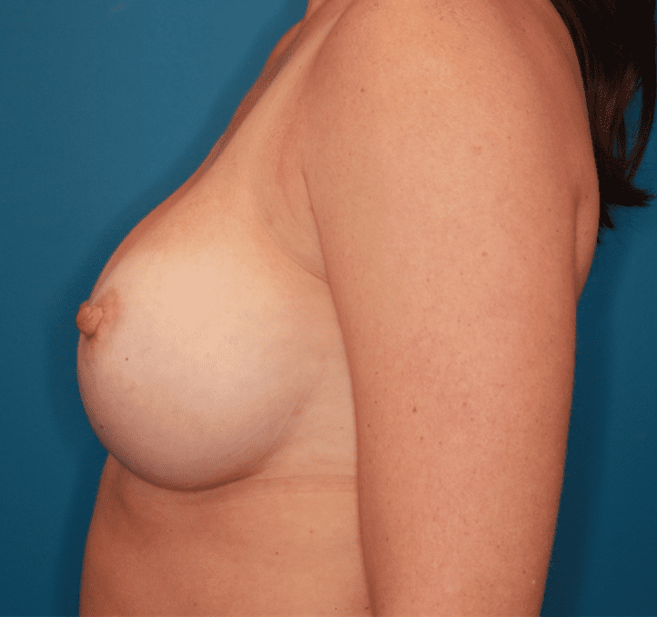 Breast Augmentation Patient Photo - Case 159 - after view-2