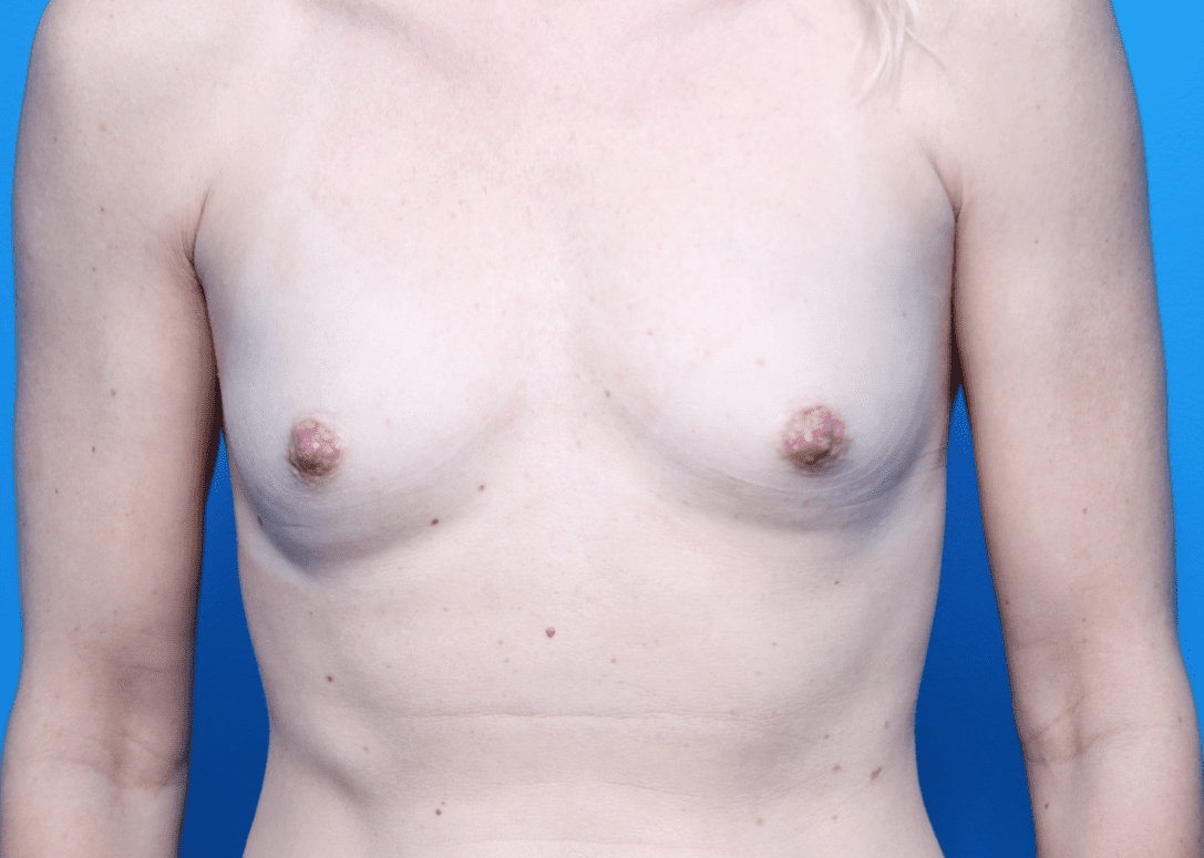 Breast Augmentation Patient Photo - Case 162 - before view-