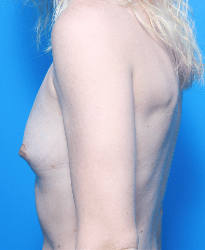 Breast Augmentation Patient Photo - Case 162 - before view-1