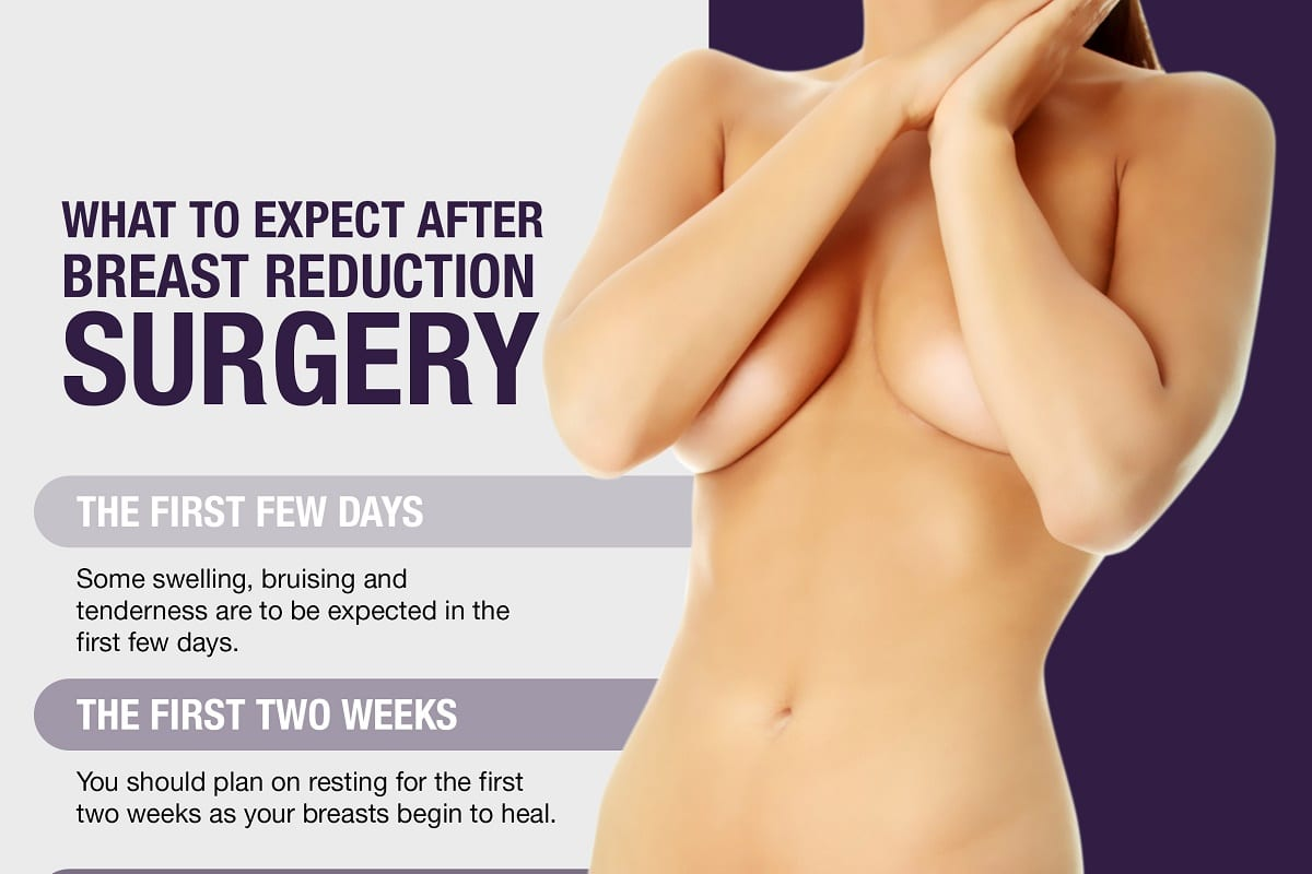 What To Expect After Breast Reduction Surgery Infographics