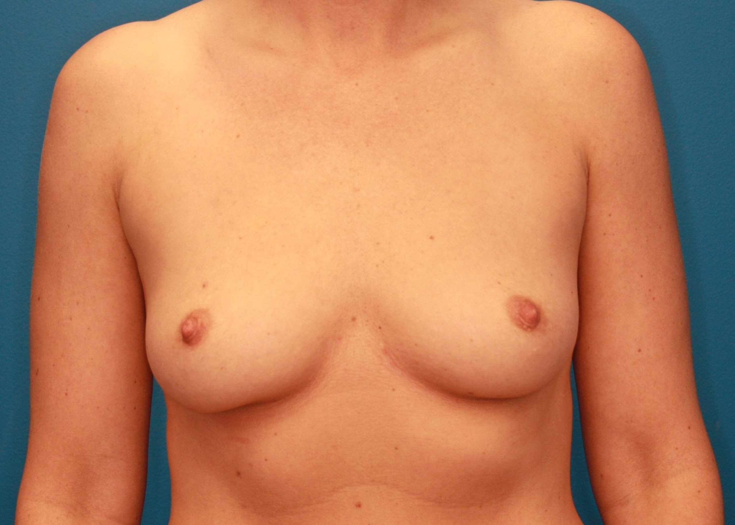 Breast Augmentation Patient Photo - Case 163 - before view-