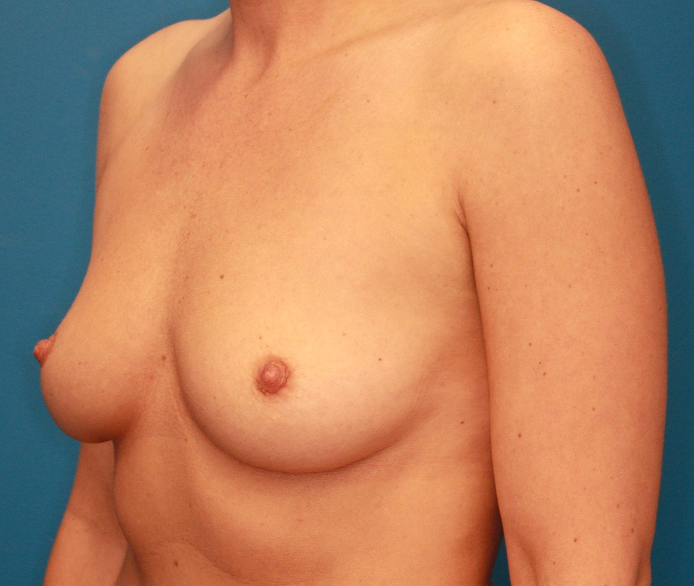 Breast Augmentation Patient Photo - Case 163 - before view-1