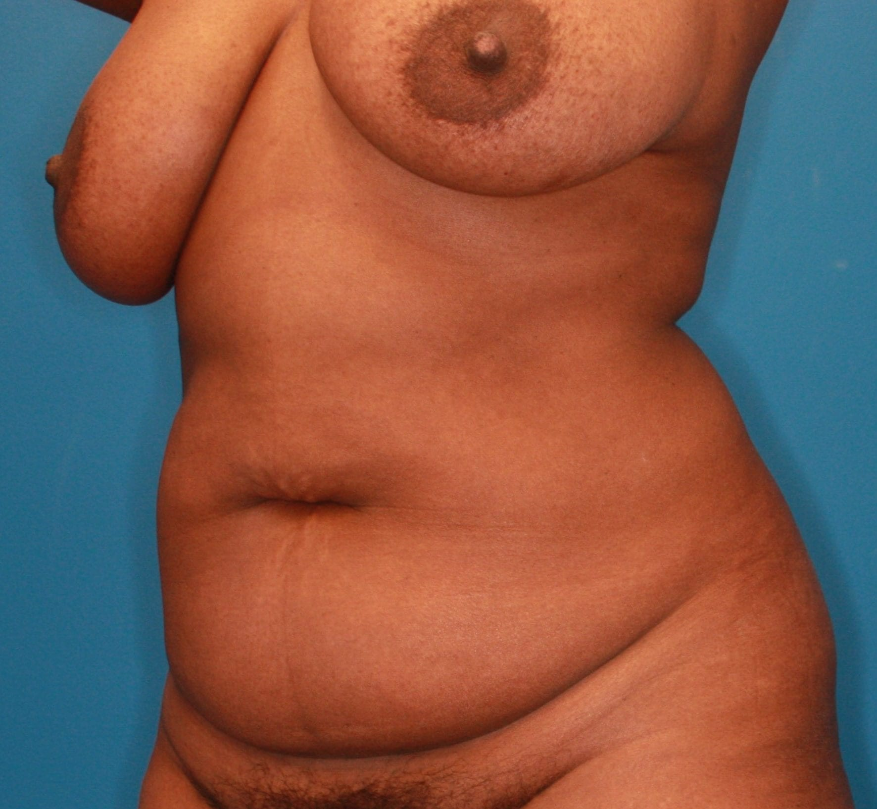 Breast Lift Patient Photo - Case 165 - before view-1