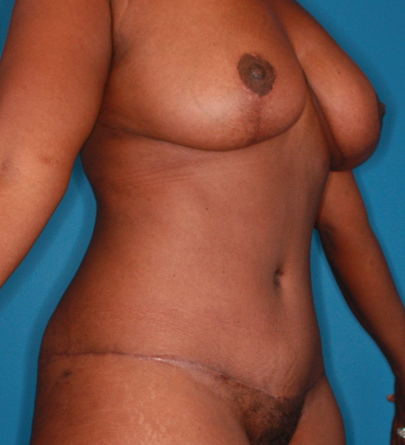 Breast Lift Patient Photo - Case 165 - after view-4
