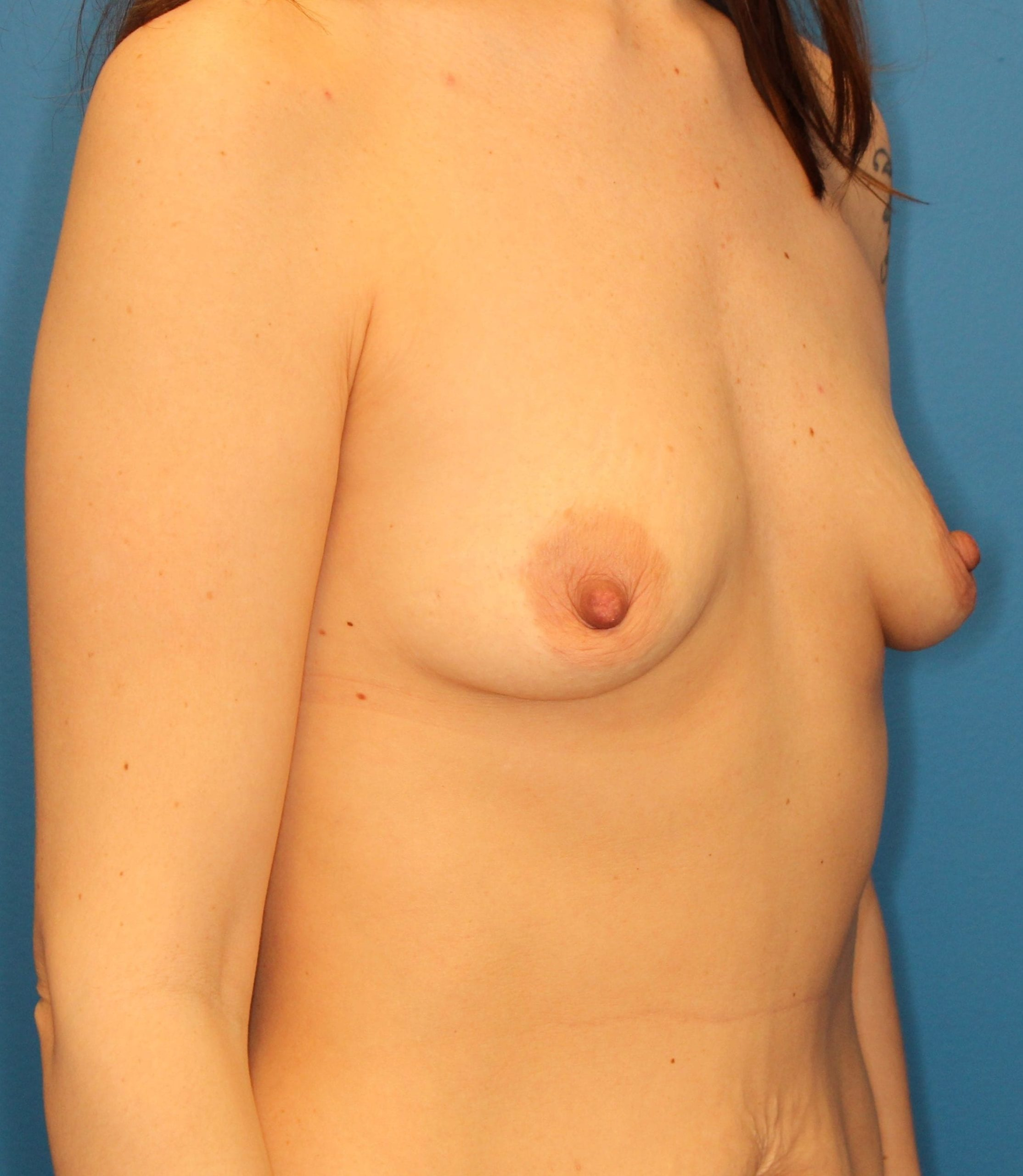 Breast Augmentation Patient Photo - Case 166 - before view-1
