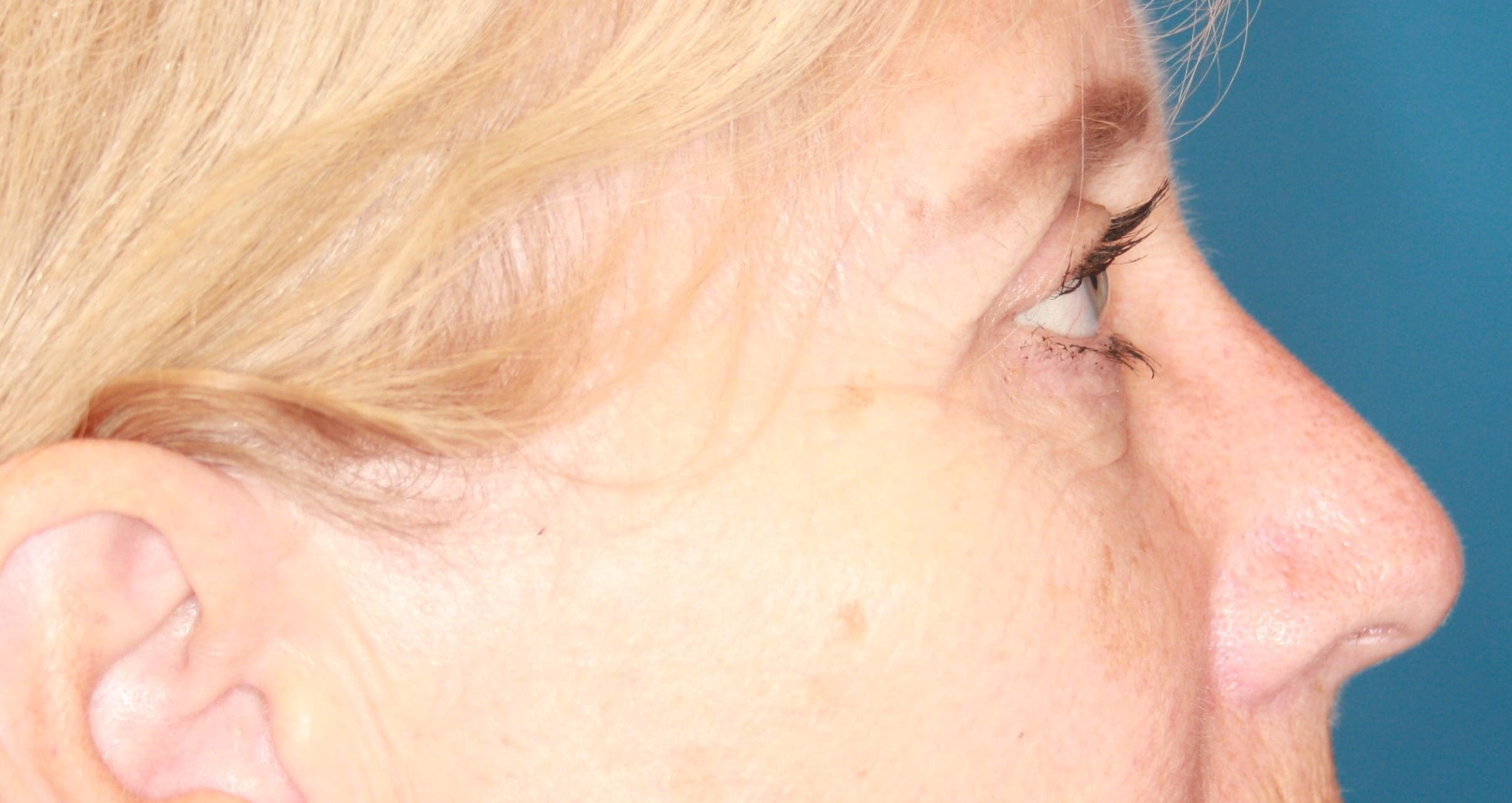 Eyelid Lift Patient Photo - Case 169 - after view-6