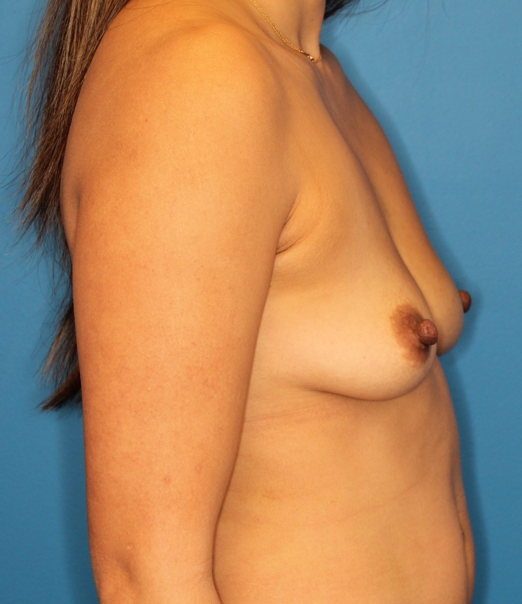 Breast Augmentation Patient Photo - Case 170 - before view-4