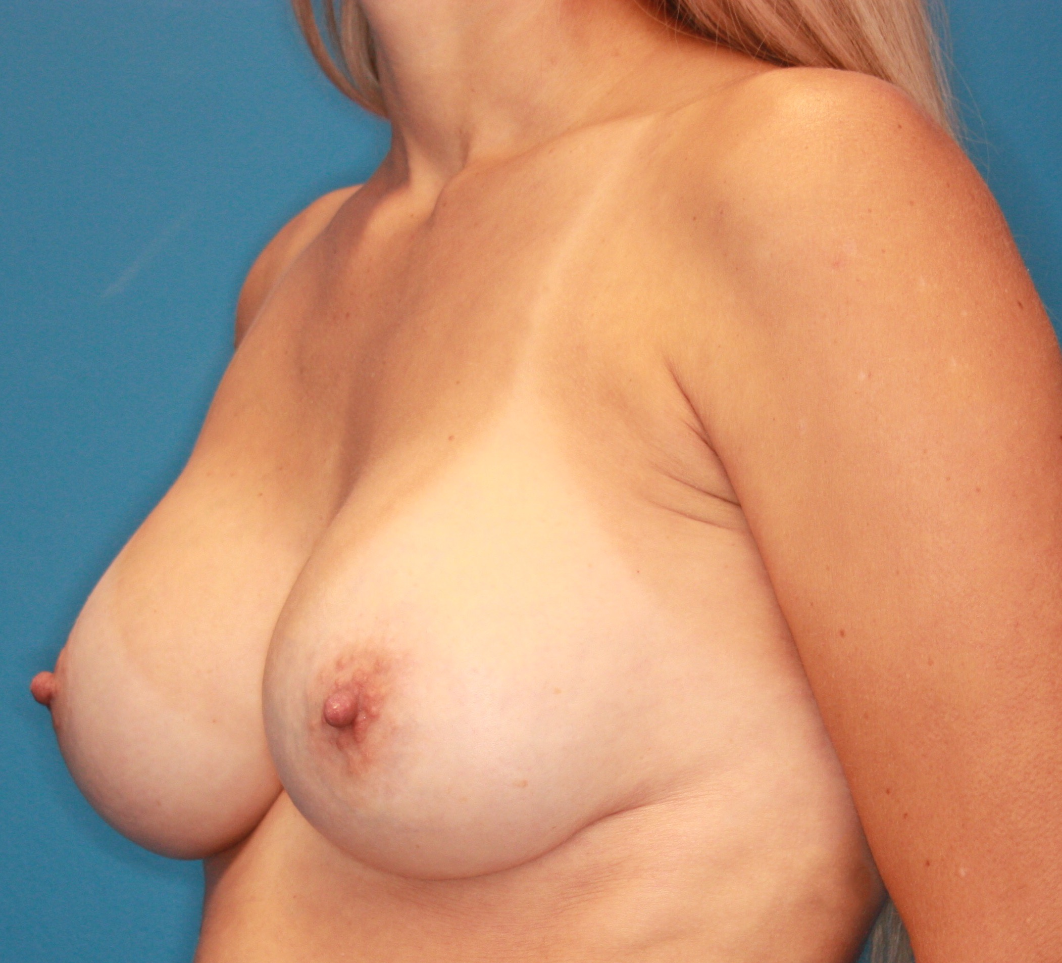 Breast Augmentation Patient Photo - Case 5042 - after view-2
