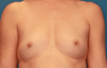 Breast Augmentation Patient Photo - Case 5049 - before view-1