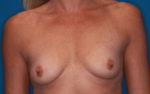 Breast Augmentation - Case 5056 - Before