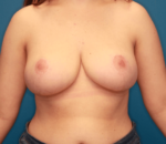 Breast Reduction - Case 5064 - After