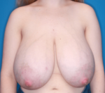Breast Reduction - Case 5064 - Before