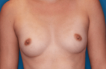 Breast Augmentation - Case 5071 - Before