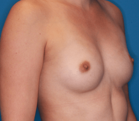 Breast Augmentation Patient Photo - Case 5071 - before view-1