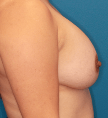 Breast Augmentation Patient Photo - Case 5078 - after view