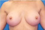 Breast Augmentation - Case 5090 - After