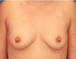 Breast Augmentation - Case 5171 - Before