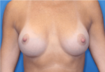 Breast Augmentation - Case 5182 - After