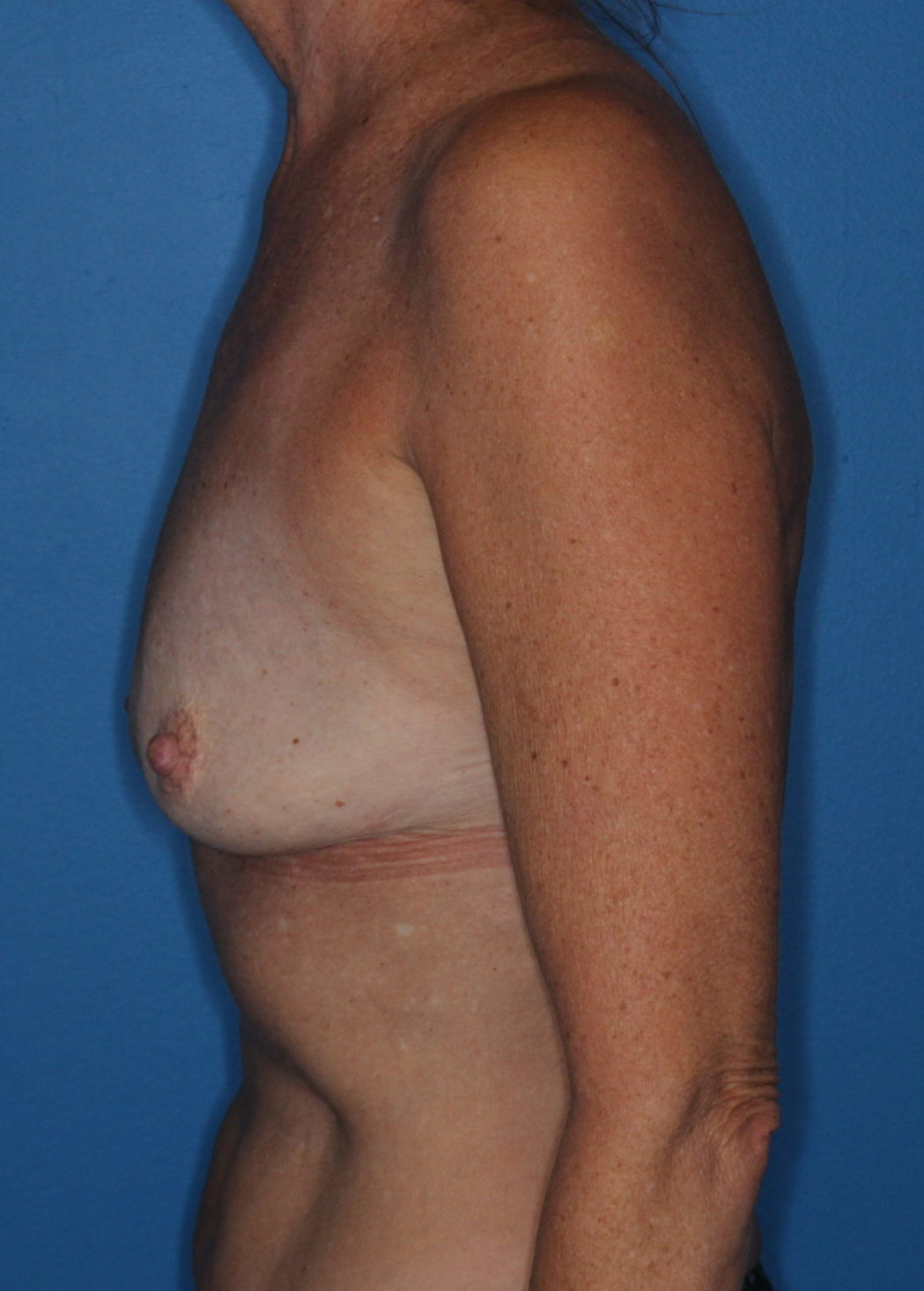 Breast Augmentation Patient Photo - Case 172 - before view-1