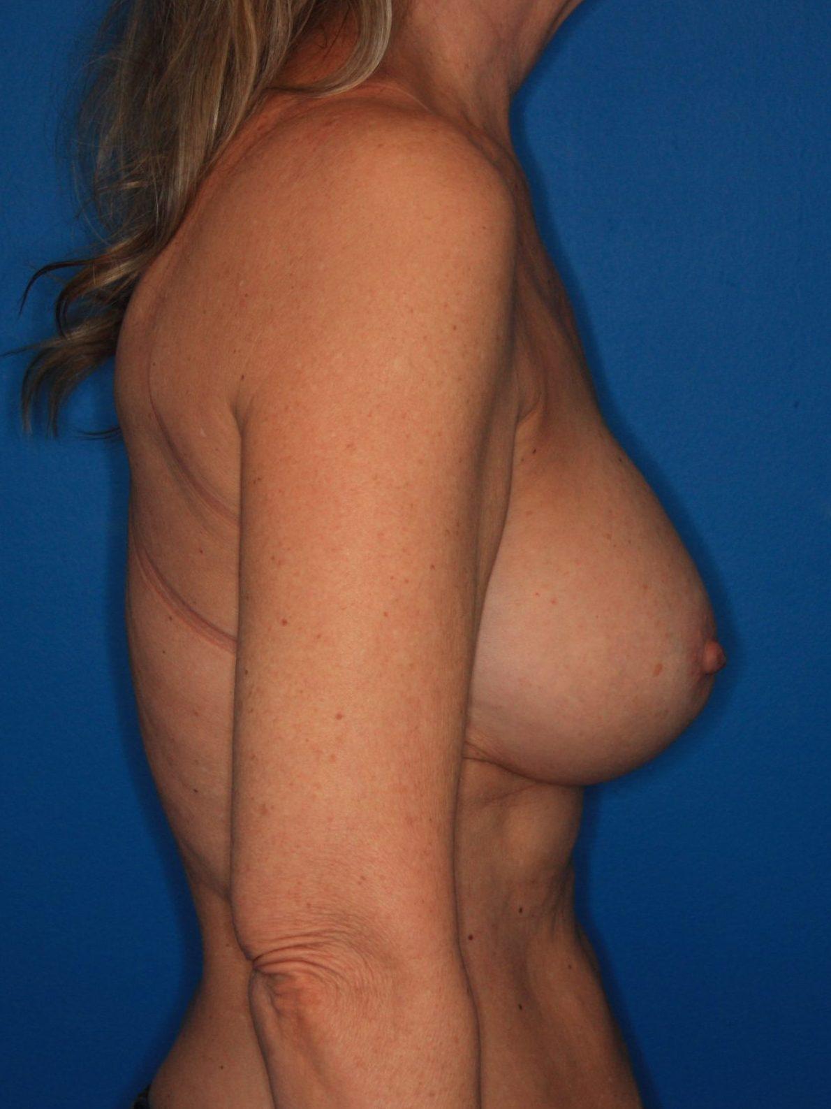 Breast Augmentation Patient Photo - Case 172 - after view-2