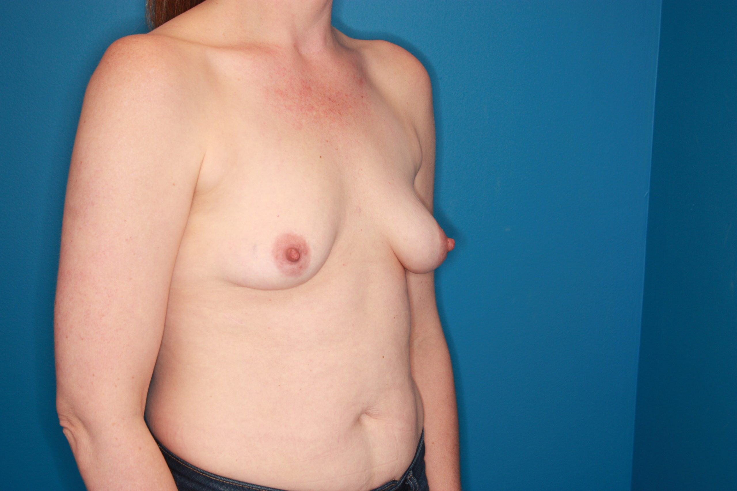 Breast Augmentation Patient Photo - Case 174 - before view-3