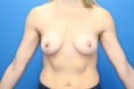Breast Augmentation - Case 176 - Before