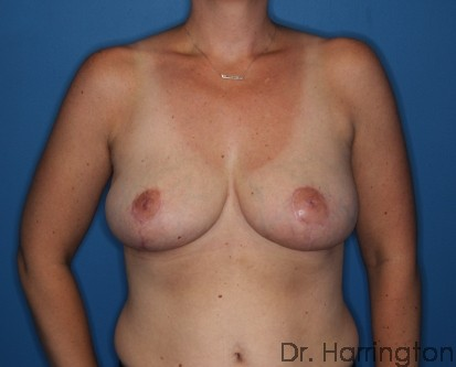 Breast Reduction - Case 108 - After